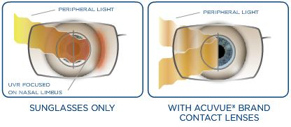 UV-blocking with ACUVUE®